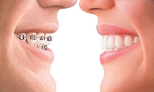 Orthodontic Dentistry in Eaglerock